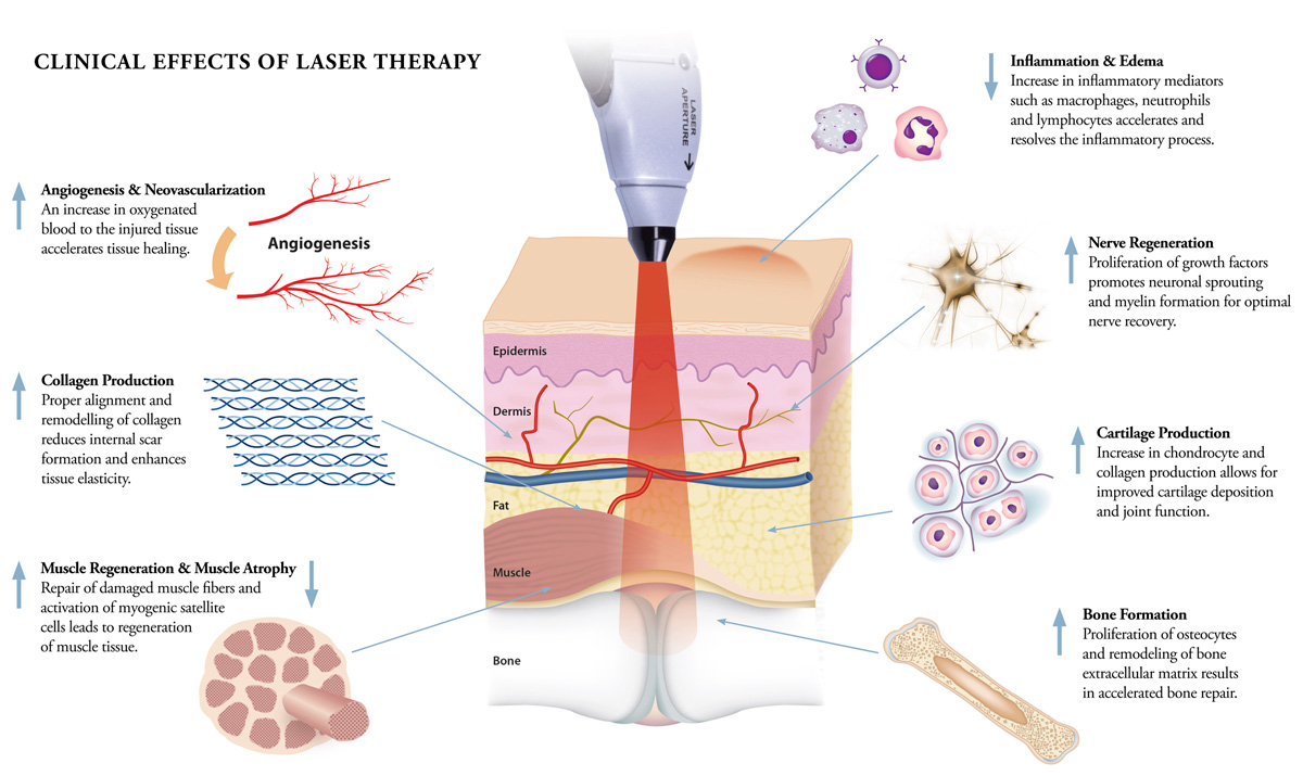 Laser Therapy Metropet Veterinary Clinic